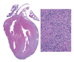 Autoimmune myocarditis Photo